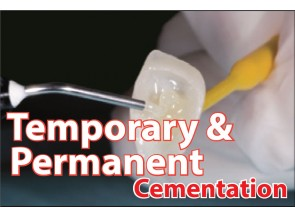 Temporary & Permanent Cementation