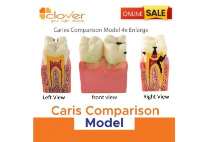 Caries Comparison Model