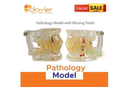 Pathology Model