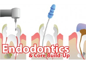 Endodontic & Core Build-Up